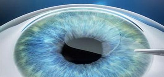 Small Incision Lenticule Extraction image